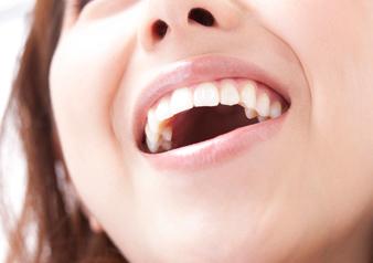 ホワイトニングとは、歯を削ったり傷つけたりせず、ホワイトニングジェルを用いて漂白し歯を白くする処置のことです。ホワイトニングには、歯科医院で行うオフィスホワイトニングとご自宅で行うホームホワイトニングがあります。歯の黄ばみは先天性のものであったり、薬物・損傷によるもの食生活や加齢の影響など様々な原因で起こります。見た目が気になってお困りの方は、ホワイトニングで本来の白い歯を取り戻しましょう。