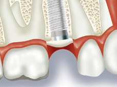 これまで、歯を失ってしまった場合の治療方法として、一般歯科(健康保険適応内)で治療ができる義歯(入れ歯)や、前後の歯を削って被せるブリッジなどが中心でした。ですが、近年第3の治療方法として「インプラント治療」が増加してきております。インプラントとは、歯の抜けたあごの骨に人工歯根(インプラント)を埋め込み、その上から人工の歯を被せる治療方法です。ブリッジや入れ歯のような違和感や異物感がなく、本物の歯と同じような使用感があるのが特徴です。