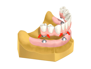 当院では、奥のインプラントを骨のある部分へ斜めに埋め込み力を均等に配分し、最小4本のインプラントで全ての人工の歯を支える最先端のインプラント治療法All-on-4を採用しています。手術や費用の負担を必要最低限に抑えられます。