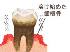 歯茎が炎症で歯槽骨が溶け始め、歯がグラグラになり抜け落ちます。これが歯周病です。